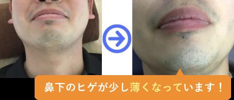 鼻下のヒゲが少し薄くなっています!