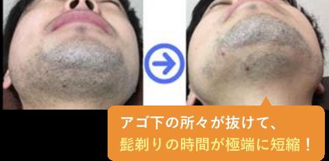 アゴ下の所々が抜けて、髭剃りの時間が極端に短縮!