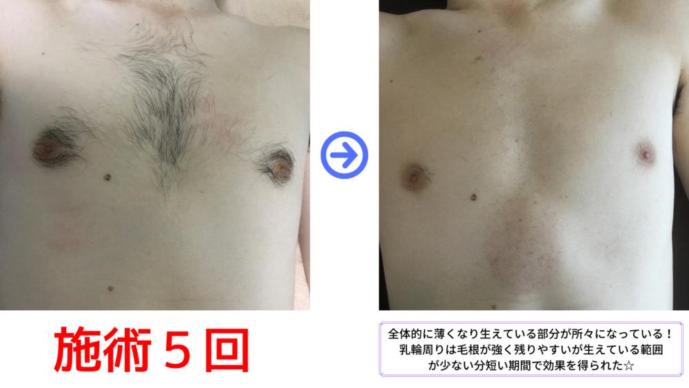 胸脱毛5回のビフォーアフター写真です