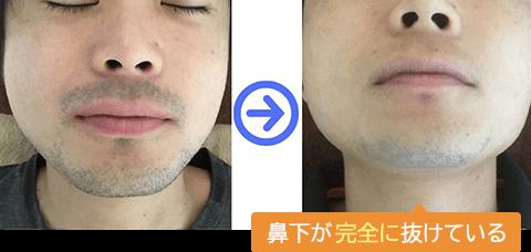 鼻下の両サイドが薄くなっています